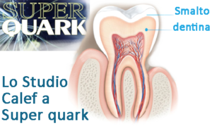 dentina-studio-calef-superquark
